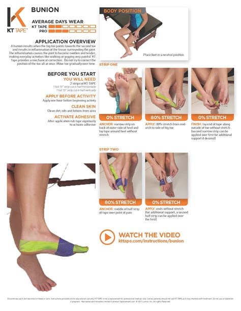 KT Bunion Taping: Tape provides a mechanical correction